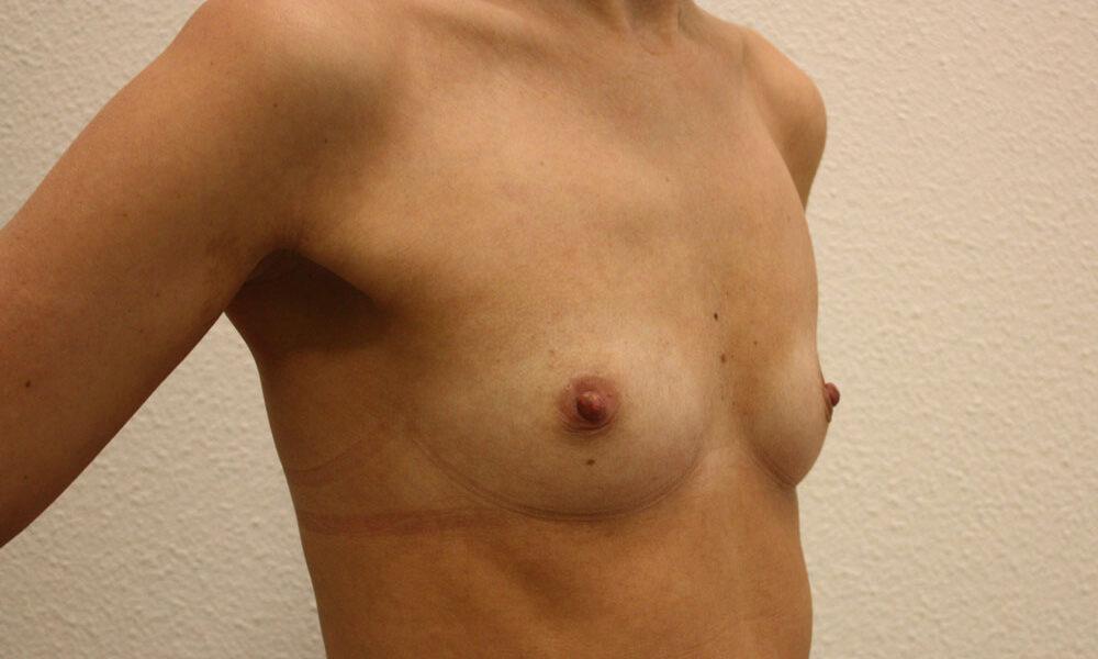 borstvergroting--8--voor