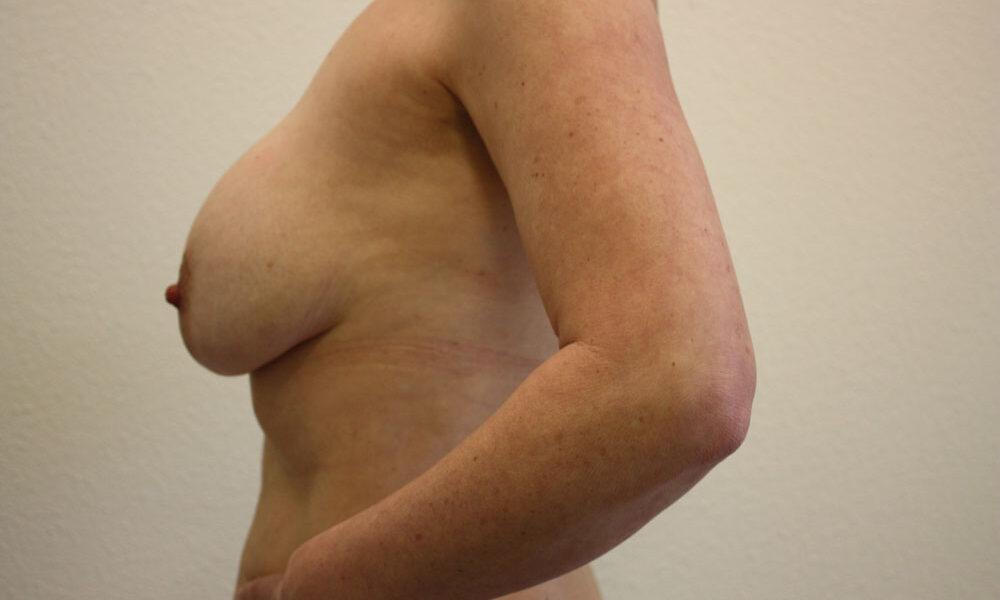 verwijderen-protheses--1--voor